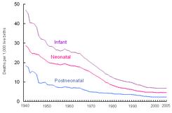 Muerte Perinatal Wikipedia La Enciclopedia Libre