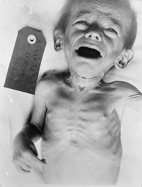 Image illustrative de l'article Famine aux Pays-Bas en 1944