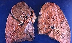 Pneumocystis jiroveci pneumonia