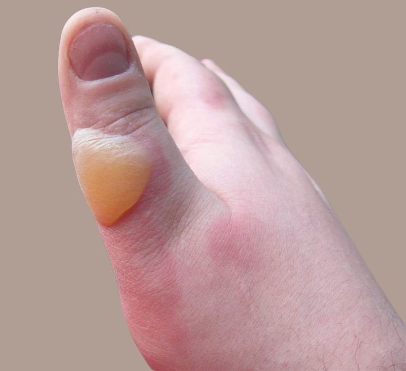 Second-degree burn of the thumb