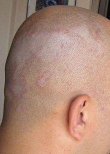 Neurodermatitis su una faccia circa un anno