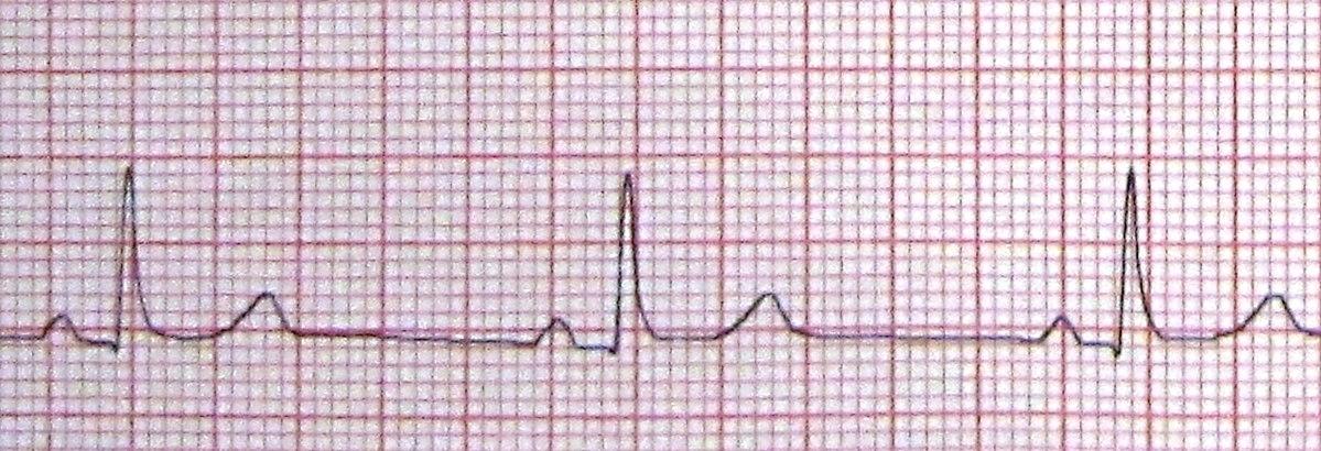 hipertenzija bradikardija hipertenzijos gydymas veiksmingas