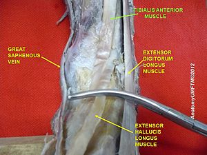 Tibialis anterior muscle - Image: Slide 3dddd