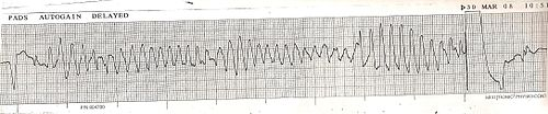 Torsades converted by AICD ECG strip Lead II.JPG