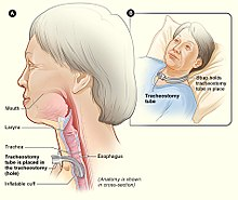 Tracheostomy NIH.jpg
