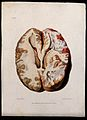A diseased brain. Coloured stipple etching by W. Say after F Wellcome V0009778ER.jpg