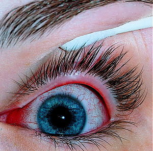 An eye with viral conjunctivitis.jpg