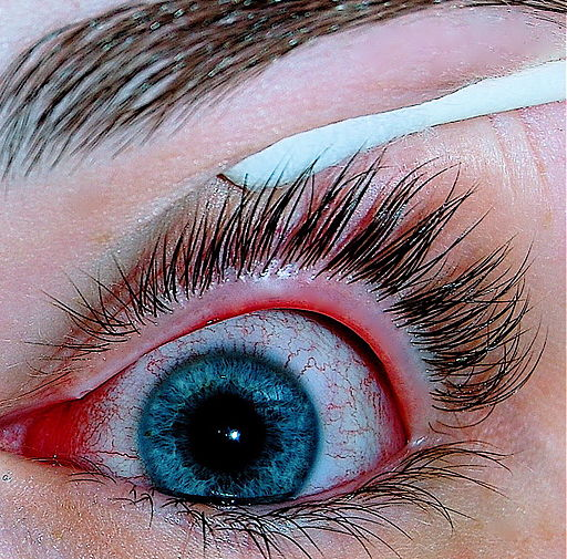 An eye with viral conjunctivitis