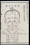 Chinese C18; Paediatric pox -- outcome by physiognomic signs Wellcome L0039833.jpg