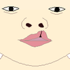 Cleft lip left 1 front.png