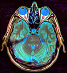 Syndróm prázdneho sedla - Wikipédia