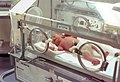 Infant-Incubator-wBaby-1978-USA.jpg