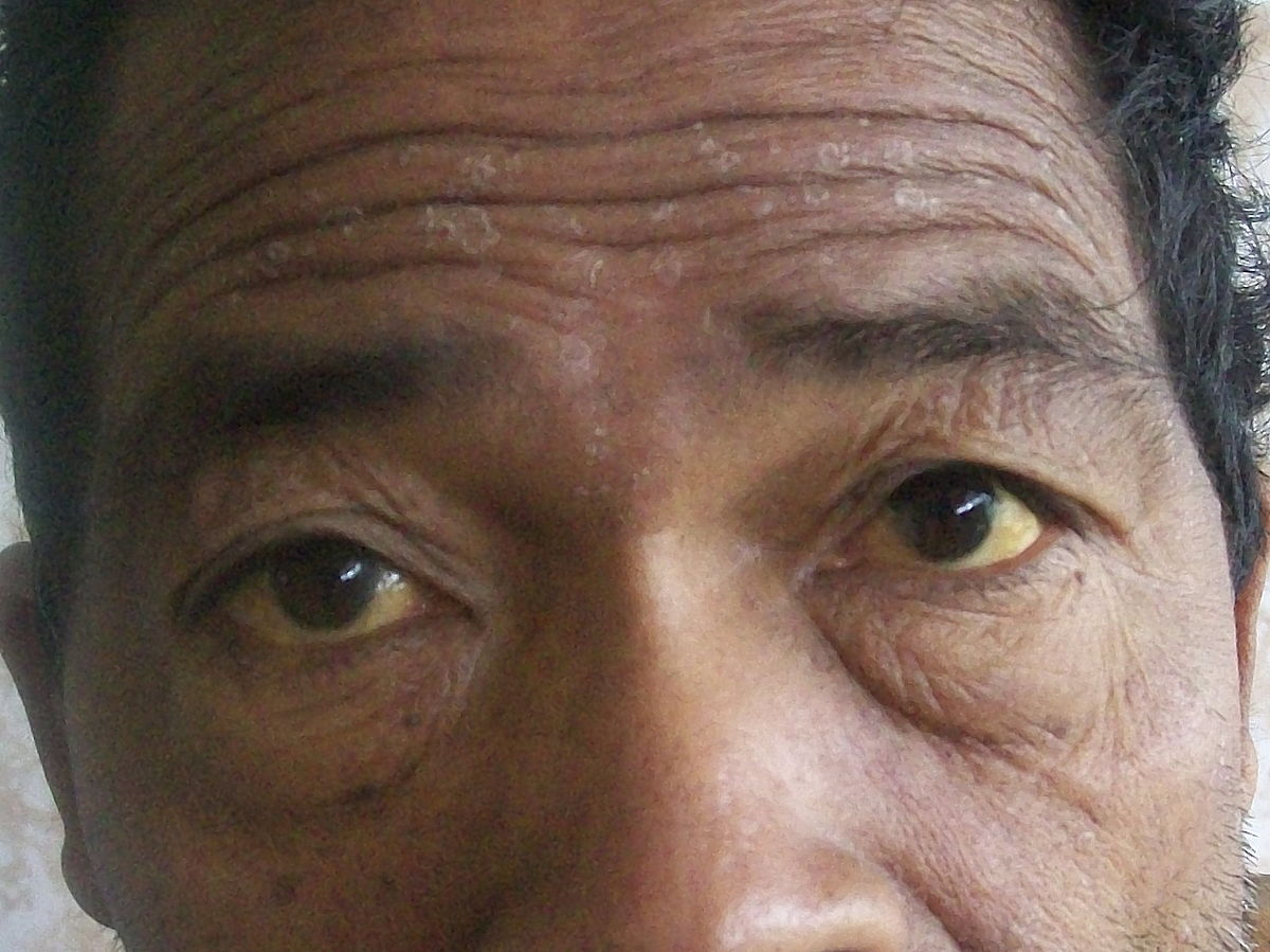 tiempo de recuperación de infección de ojo de perro