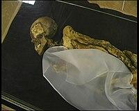 segített múmia a prosztatitisben