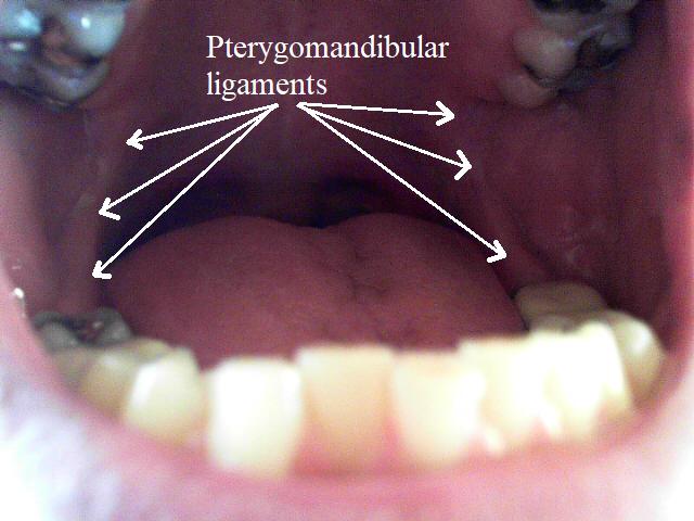 Open mouth pterygomandibular ligaments