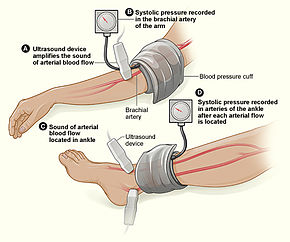 Measuring The Ankle Brachial Index