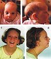 Pitt-rogers-danks syndrome.jpg