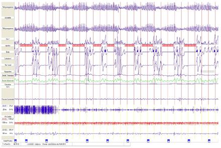 metronidazole dosage for humans giardia