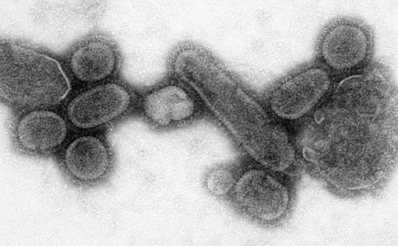 Transmission electron microscope image of a recreated 1918 influenza virus Reconstructed Spanish Flu Virus.jpg