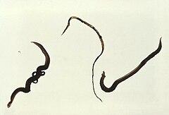 Schistosoma mansoni trematodes.jpg