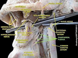 Pharyngeal plexus of vagus nerve - Image: Slide 5ggg