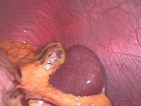Spleen.jpg