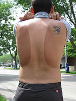 Tan Lines on human male back.jpg