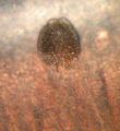Trophont of Amyloodinium ocellatum.png