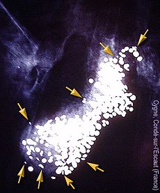An X-ray picture with numerous small pellets highlighted in white