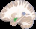 Amygdala left lateral slice.png