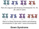Blausen 0326 DownSyndrome