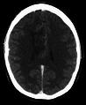 BrainOligoastrocytomaNo.png
