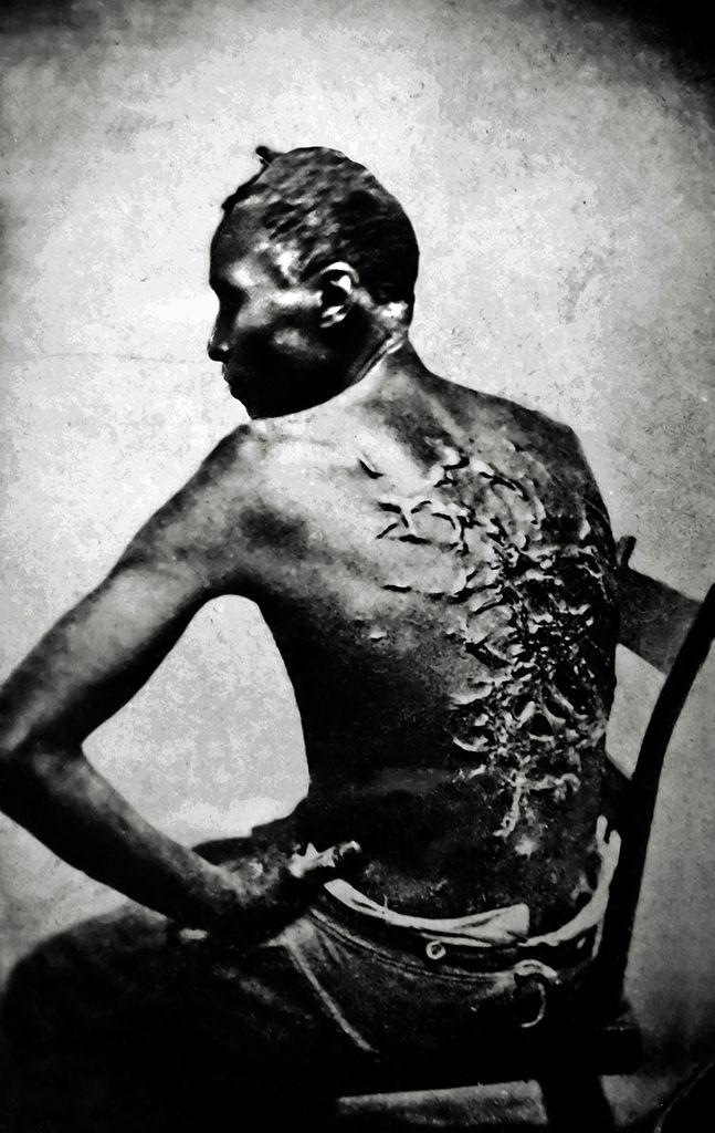 Les photos d'un esclave