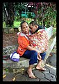 Effects of Malnourishment - Indonesia (17057576905).jpg