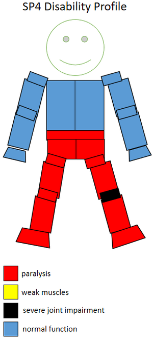 F54 (classification) - Functional profile of a wheelchair sportsperson in the F4 class.