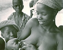 79f2d6662f22a A new mother in Kabala, Sierra Leone in West Africa nurses outdoors.