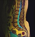 Lumbosacral MRI case 09 09.jpg
