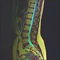 Lumbosacral MRI case 13 07.jpg