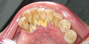 Calculus (dental) - Heavy staining and calculus deposits exhibited on the lingual surface of the mandibular anterior teeth, along the gumline.
