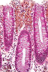 Hemosiderin-laden macrophages skin dating