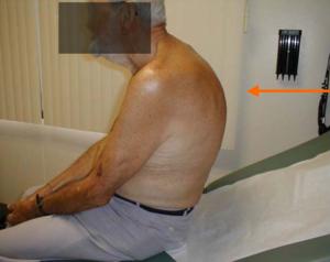 Example of poor posture or postural kyphosis