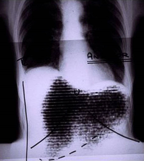 Rectilinear scan and chest X-ray fusion.png