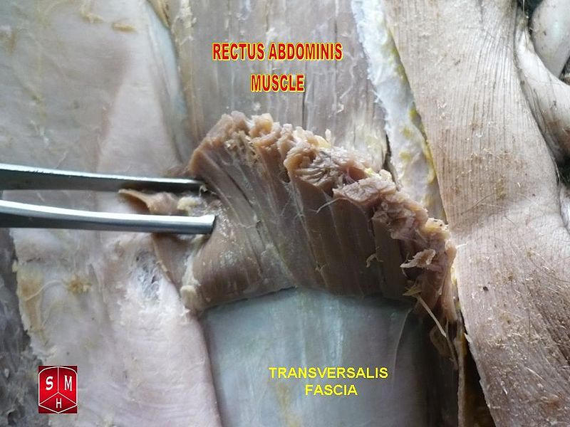 Filerectus Abdominis Muscleg Wikipedia