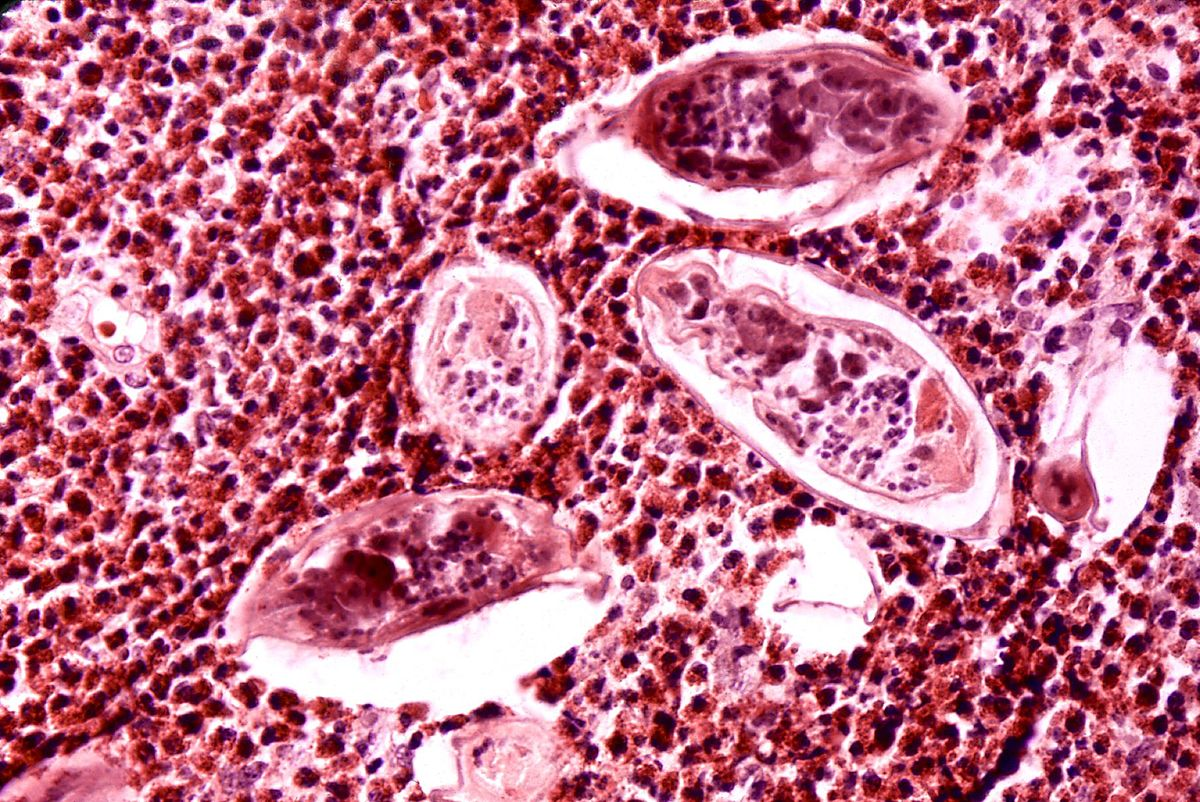 examen microscópico de parásitos sanguíneos