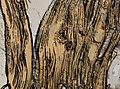 Trichinella spiralis (YPM IZ 095189).jpeg
