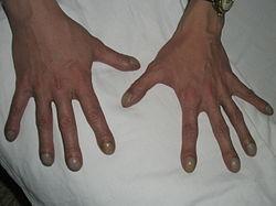 sköldkörtel symptom ärftligt