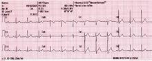 elettrocardiogramma a 12 derivazioni con ritmo sinusale. Si notano le onde P normali