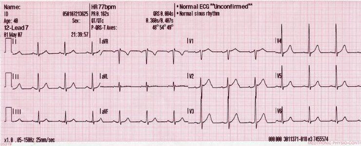photo about Printable Ekg Strips titled Consumer:Bron766/ECG - Wikiversity