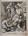 A satyr wearing eyeglasses, with young assistant, removes a Wellcome V0016588.jpg