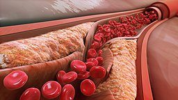 Build up of cholesterol plaques
